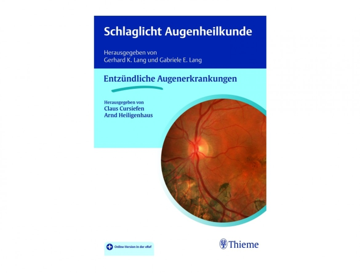 New book with an angle on how patients can profit from inflammatory eye disease research